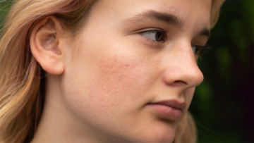 What Are Skin Concerns?