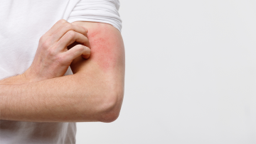 Who Does Skin Conditions Hurt?